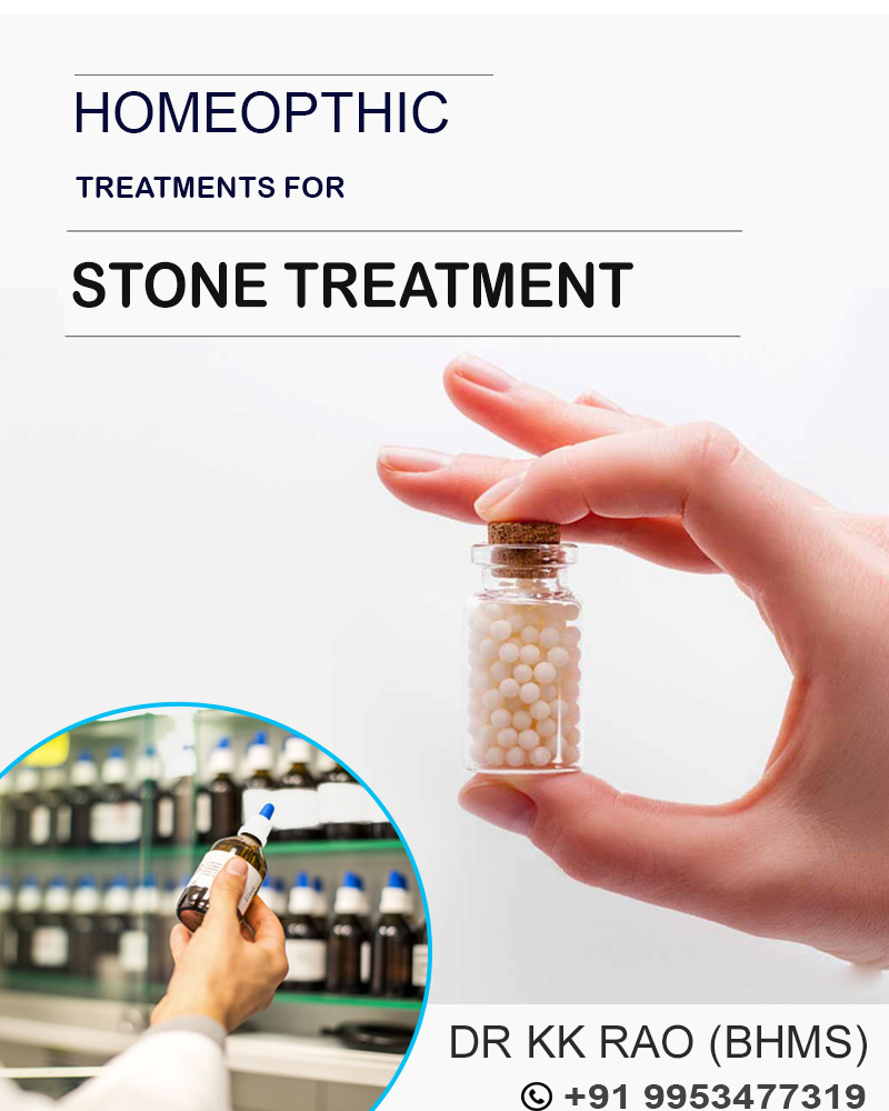 Homoeopathy stone treatment in Gurgaon